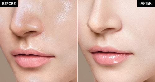 oily skin before and after